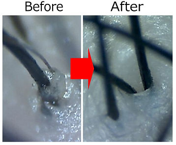 頭皮洗浄の効果