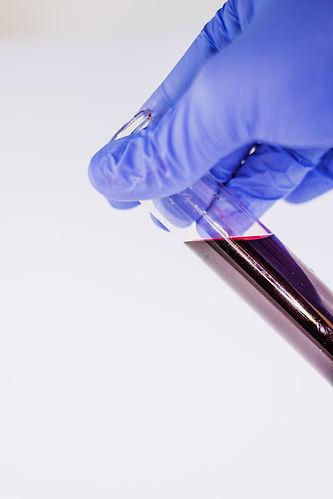 blood-1291131.jpg