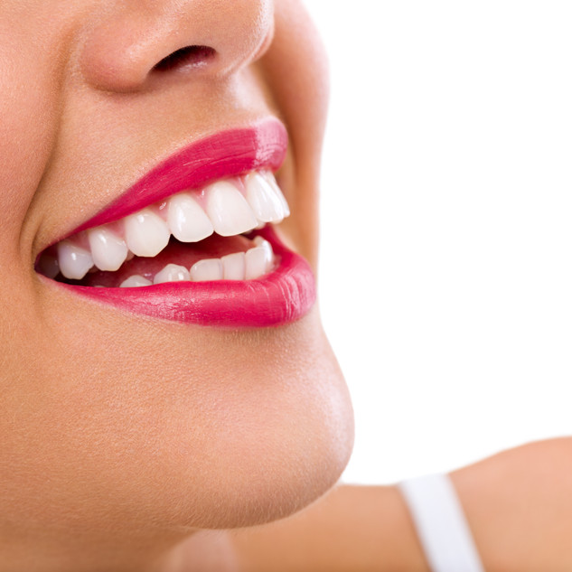 Dr.carrillohaack diseño de sonrisas