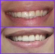 Dr carrillo haack Estetica Dental en Venezuela