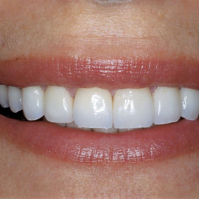 Drcarrillohaack  Estetica dental en Caracas Venezuela