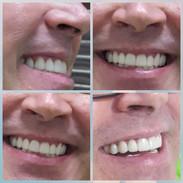 Dr.CarrilloHaack  Odontologo estetico en Caracas Venezuela
