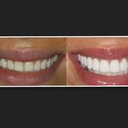 Diseno de Sonrisas en Caracas Dr.CarrilloHaack