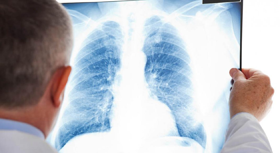 pulmones_e_infecciones_1_1589402362.jpg