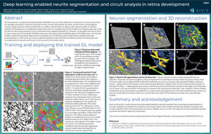 ASCB-EMBO 2018 Poster: Deep learning enabled neurite