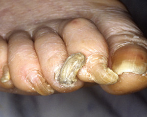 Rams Horn Nails