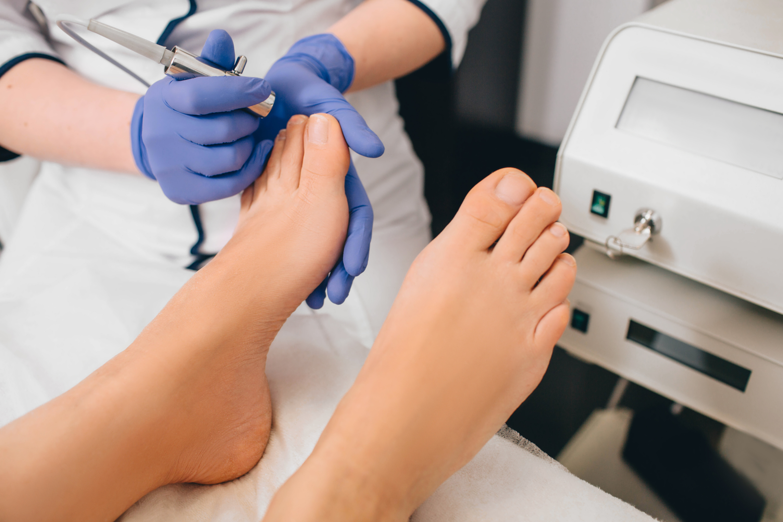 Antifungal LASER Treatment