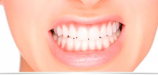 Clínica de Odontologia da Faculdade Suprema recruta pacientes