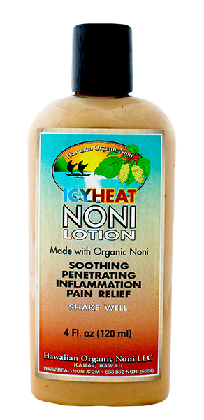 IcyHeat Noni Lotion (4 oz)