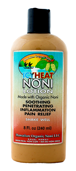 IcyHeat Noni Lotion (8 oz)