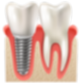 dental implant.png