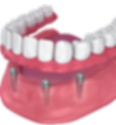 dentures + implants.png
