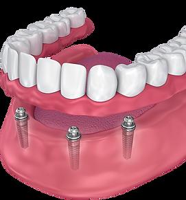 dentures + implants.png