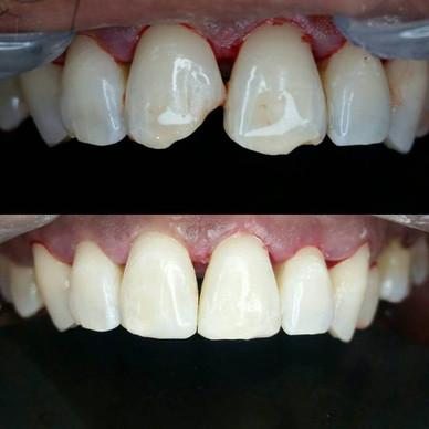 Emergency Dental Work
