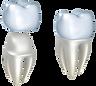 dental crown.png