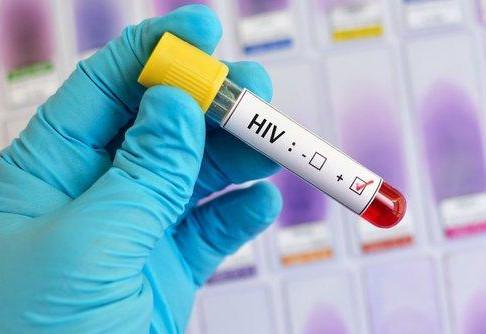 Esta mujer podría ser la primera persona en haberse curado de VIH sin tratamiento médico