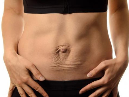 What is Diastasis Recti Abdominus (DRA)?