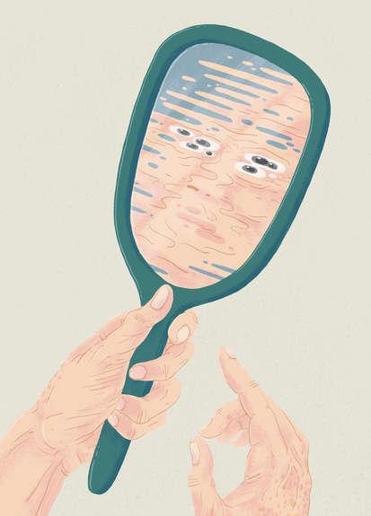Memory Disorders