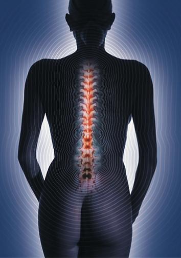 Illustration douleur dorsale