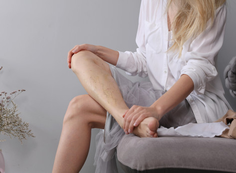5 Jobs that Put You at Risk for Varicose Veins by Kristen Socha, MS, PA-C