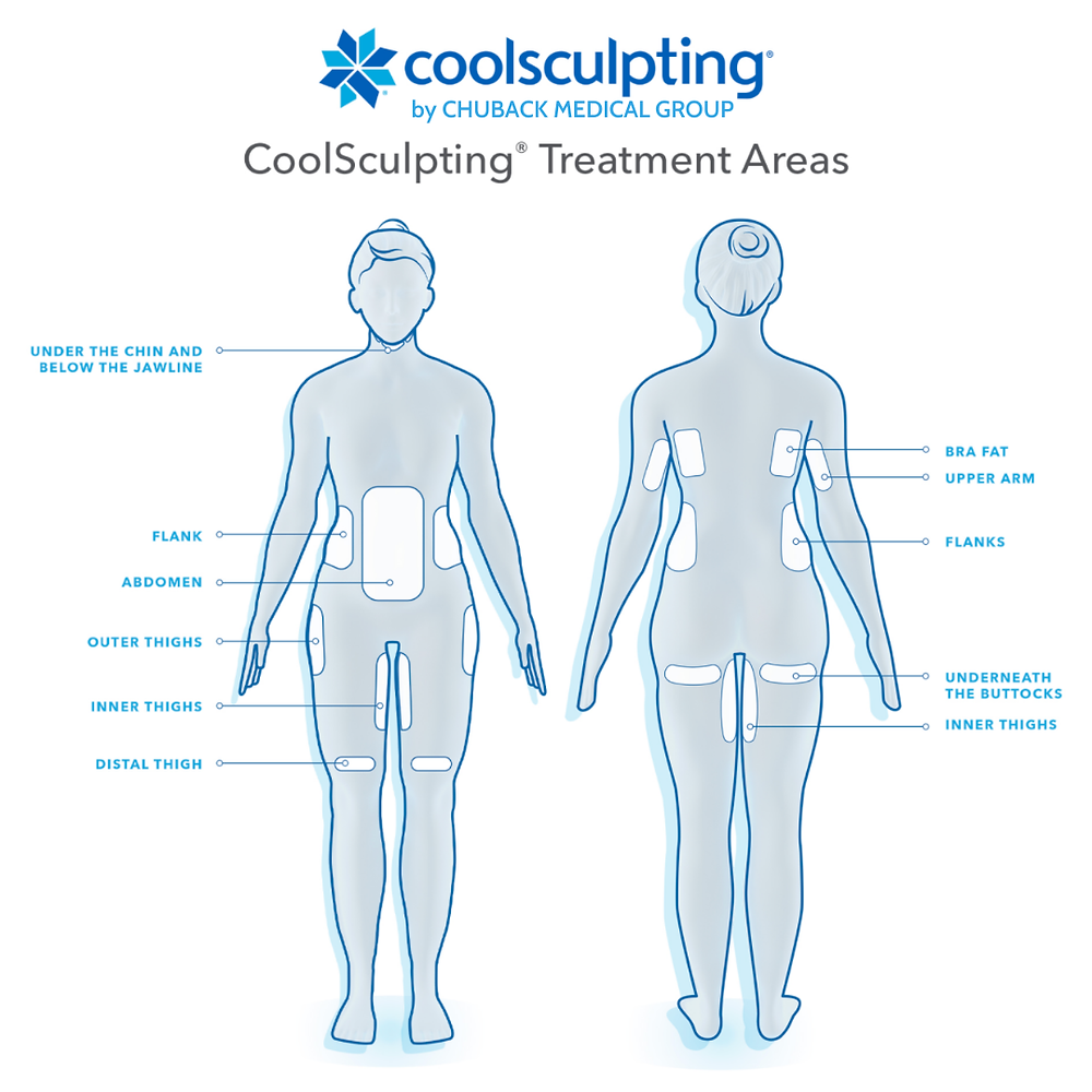 Turn That Closet Full of 'Nothing to Wear' Into a 'New' Wardrobe with CoolSculpting by Cassie Thomas, Bergen County Moms