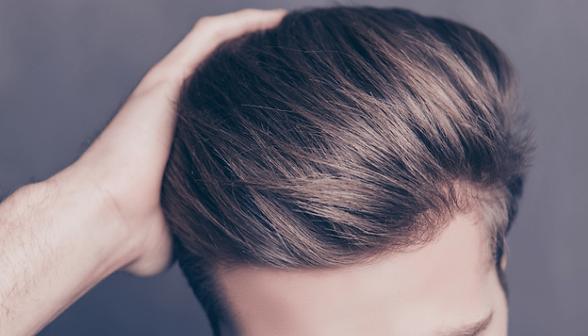 Dermagyms - Traitement chute de cheveux homme.png