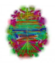 Urchs Brain