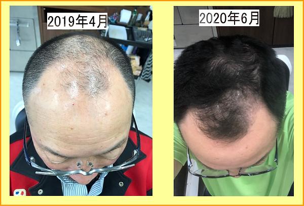 2019.04~2020.06経過まで.png