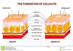 formation-cellulite-vector-diagram-occur