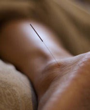 Medical Acupuncturist