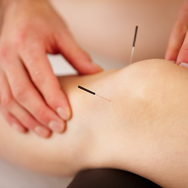 Acupuncture needles in a patients knee area