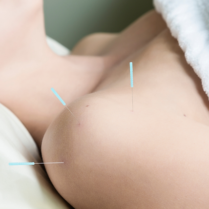 Acupuncture needles in shoulder