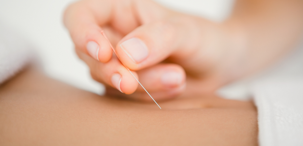 acupuncture being performed by acupuncturist