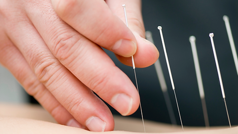 Acupuncturist hand inserting acupuncture needles into a patient
