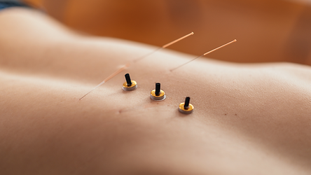 Moxibustion and acupuncture needles on patients back