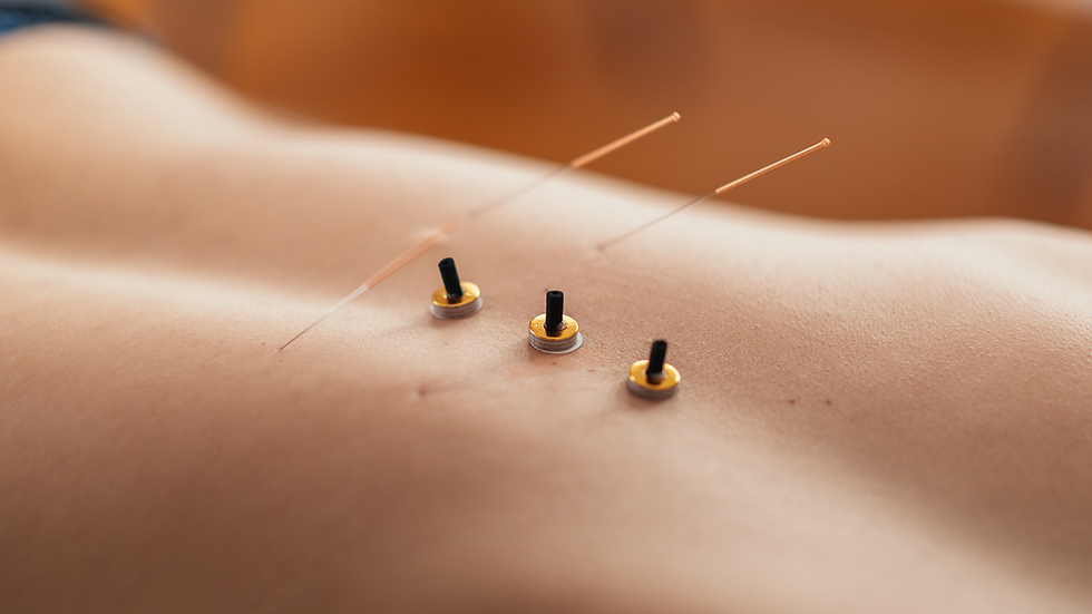 Moxibustion and acupuncture