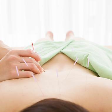Acupuncture needles in a patients back