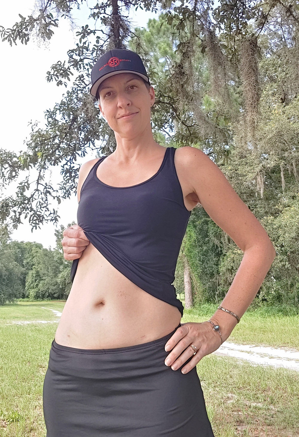 """This is me showing 3 of the 4 incision scars 6 weeks after my hysterectomy surgery. The biggest incision is 3"""" and just below my bottoms waist line."""
