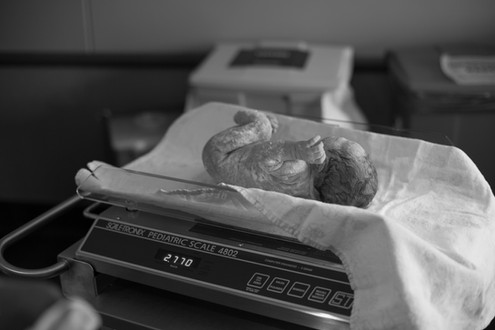 melissa jean photography - birth photogr