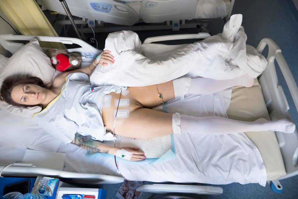 Operacja usunięcia macicy trwała sześć godzin...