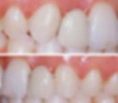 Orthodontics, Dr. Sergio Rubinstein