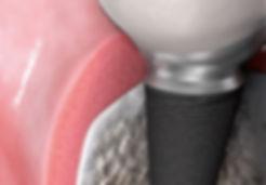 Dental Implants, Dental Reconstruction Center