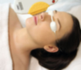 IPL skin rejuvenation 02.jpg