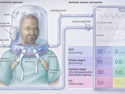 Ventilación con casco versus nasal de alto flujo