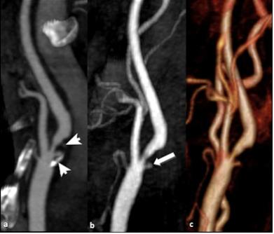 Hemorragia intraplaca asociada a mayor riesgo de ACV y coronariopatía