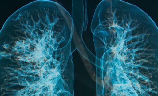 Tromboembolia arterial y venosa en el cáncer