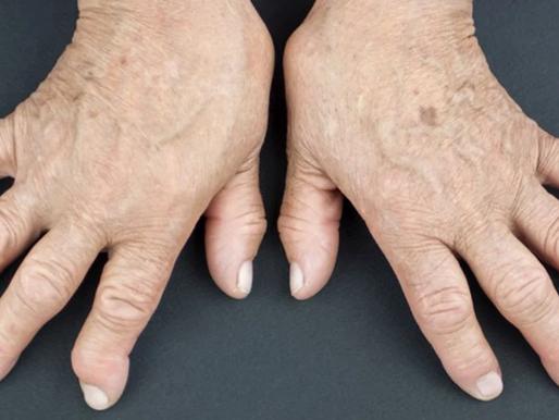 Tabaquismo en artritis reumatoidea
