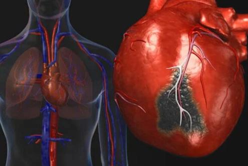 A los 5 años mayor mortalidad con angioplastia que con bypass coronario