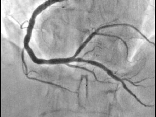 Angioplastia: peores resultados en coronarias tortuosas