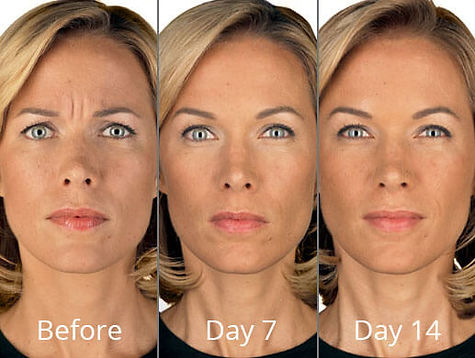 botox-before-after-virginia-chesapeake-v